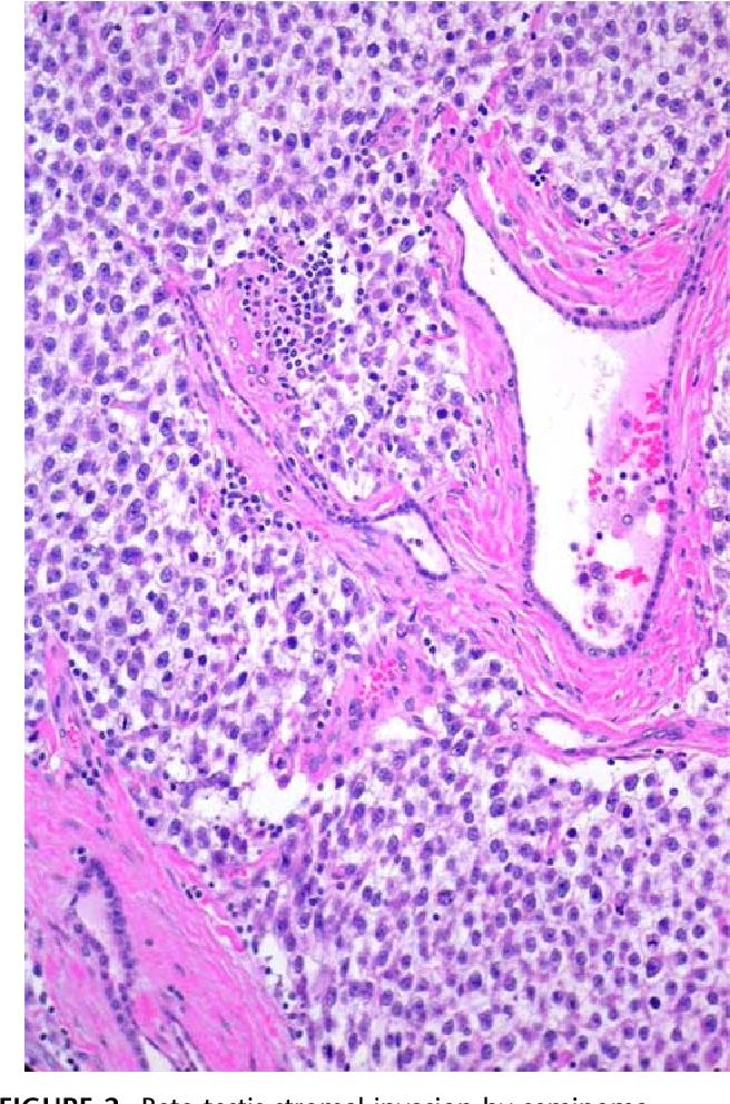 hpv 16 causes throat cancer human papillomavirus natural therapy