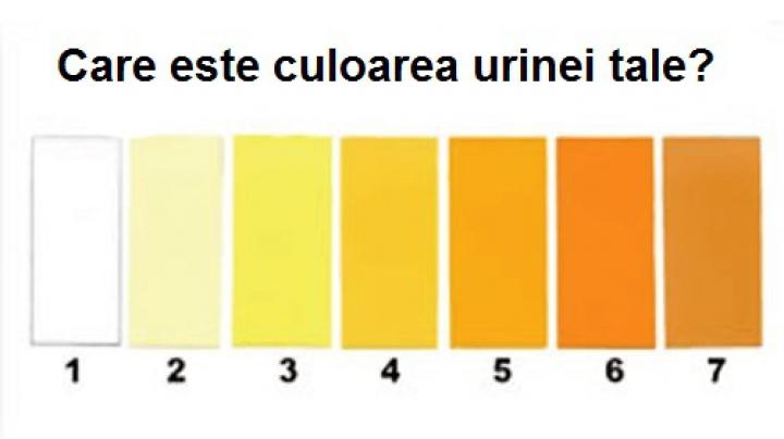 cancer urina portocalie