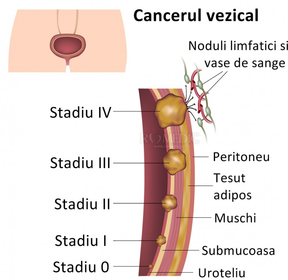 Chirurgia vezicii urinare | Royal Hospital
