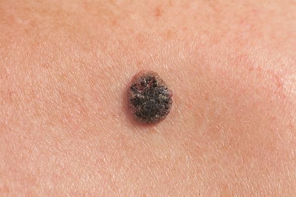 cancerul de piele la copii