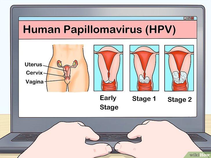 virus papiloma humano sin relaciones)