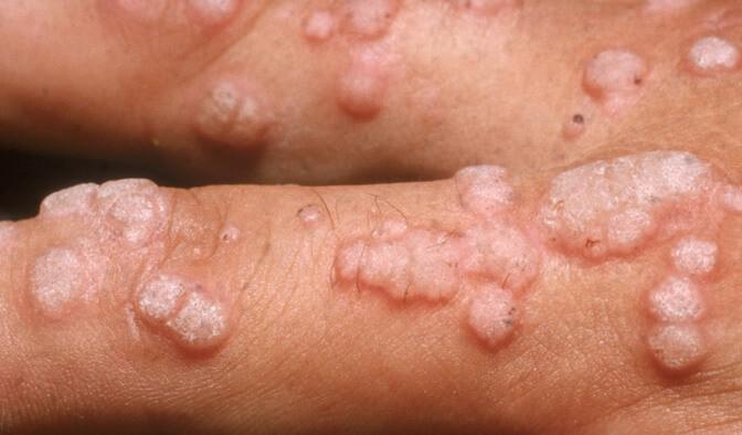 hpv genital feminino tratamento