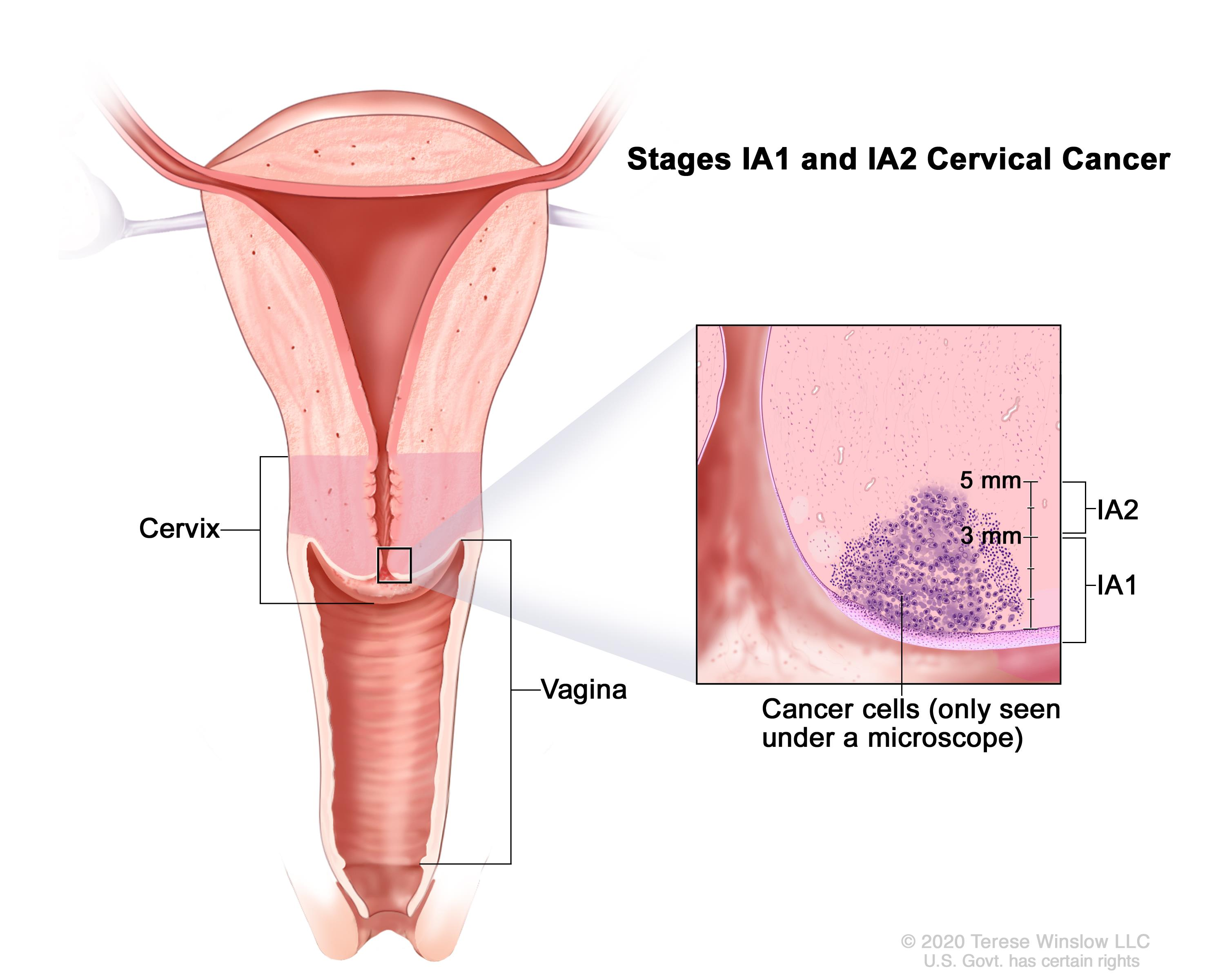 cervical cancer can you get pregnant hpv impfung vertraglichkeit