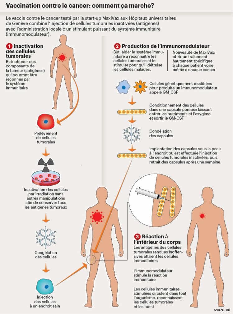 cancer pancreas jambes gonflees)