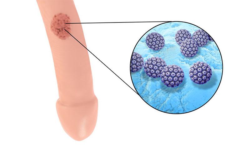 papilloma virus uomo sintomi prurito)