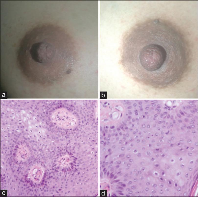 condyloma acuminata in pregnancy