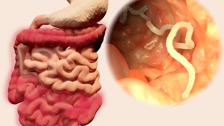 crijevni paraziti kod djece simptomi)