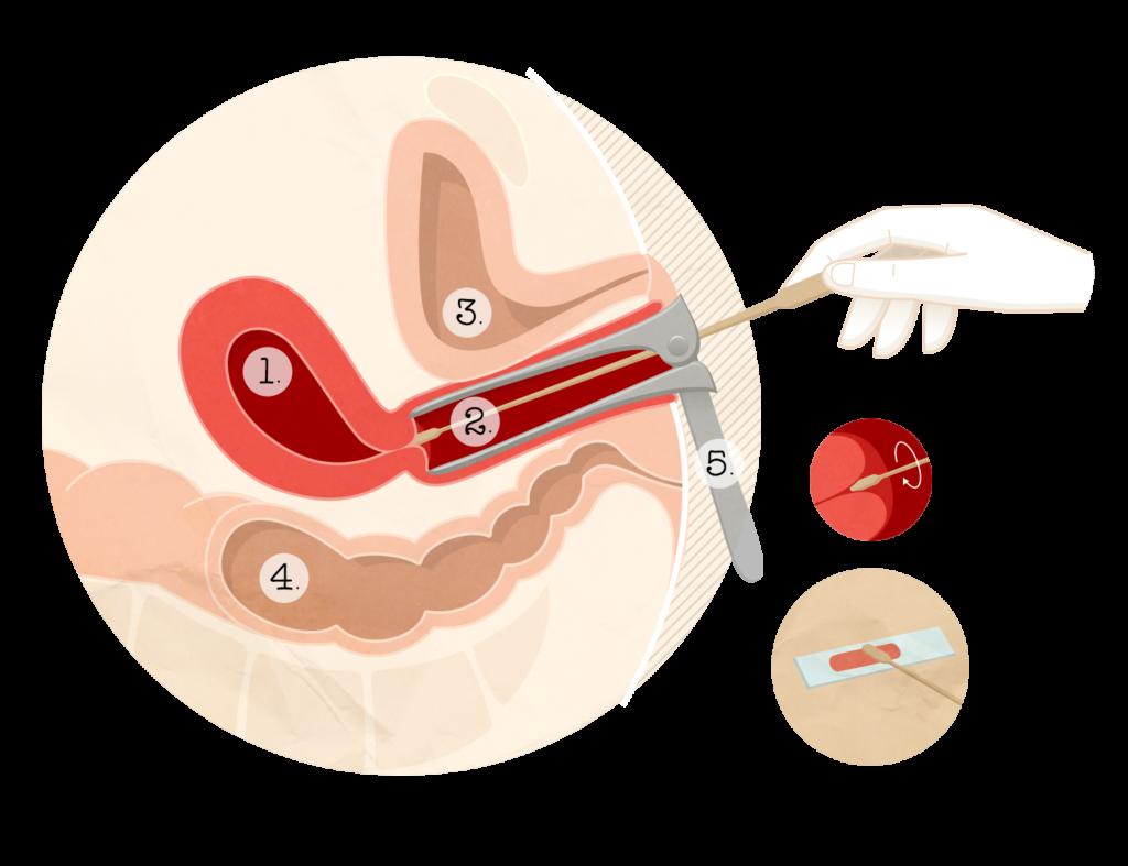 traitement papillomavirus stade 2)