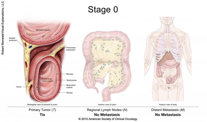 rectal cancer non regional lymph nodes)