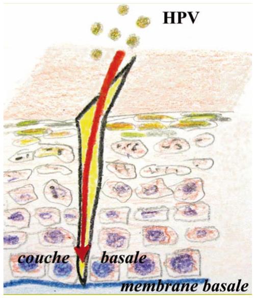 papillomavirus buccal traitement