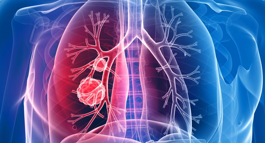 cancer pulmonar trahee)