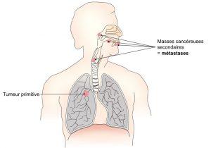 cancer pancreas huile essentielle