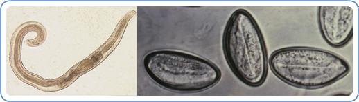 enterobiasis pinworm)