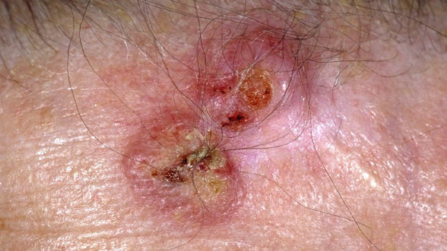 does hpv cause skin cancer)