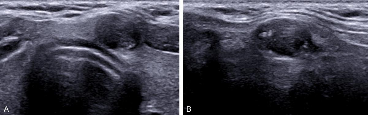 Best eco images | Ultrasound, Radiology, Ultrasound sonography