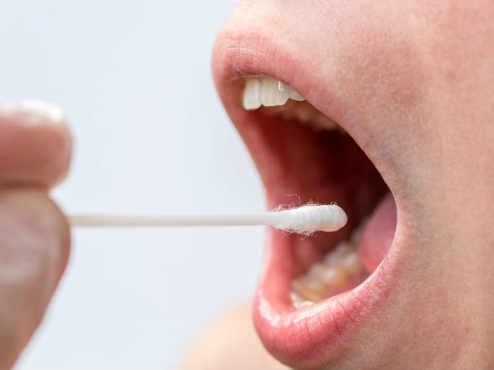 virus de papiloma humano en la garganta