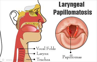 laryngeal papillomatosis adults simptome cancer la cap