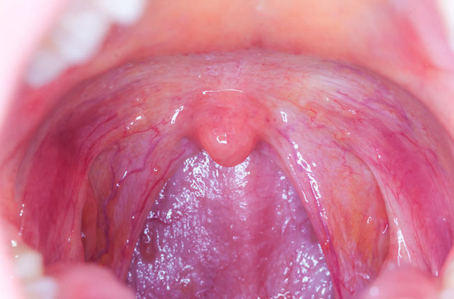 papilloma in tonsil
