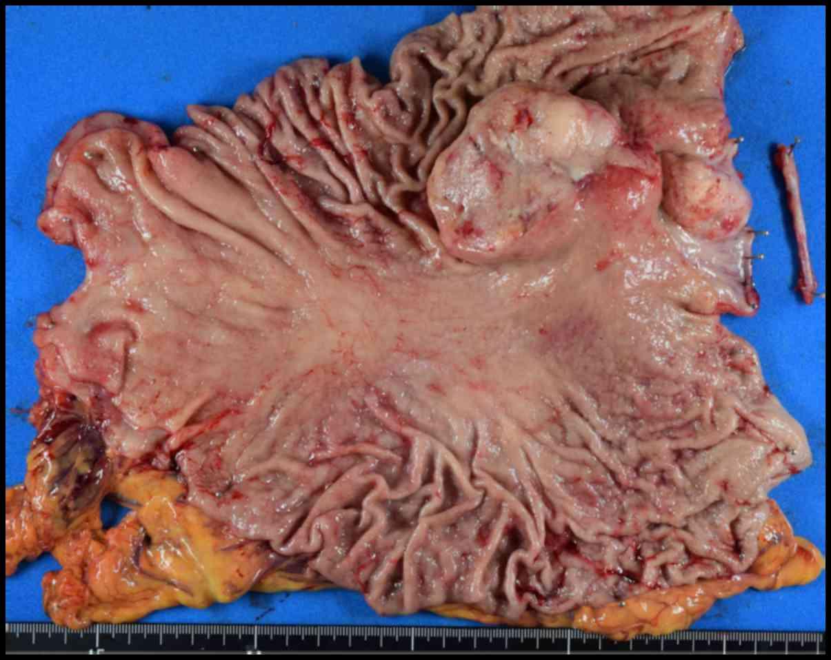 abdominal cancer metastasis