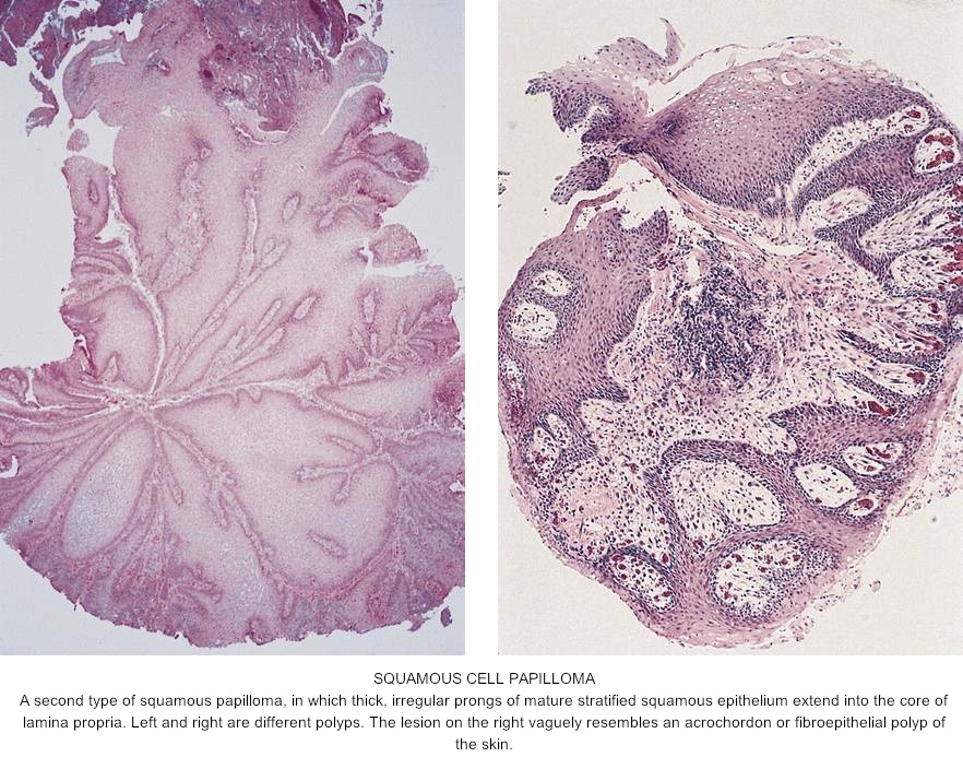 squamous cell papilloma webpathology