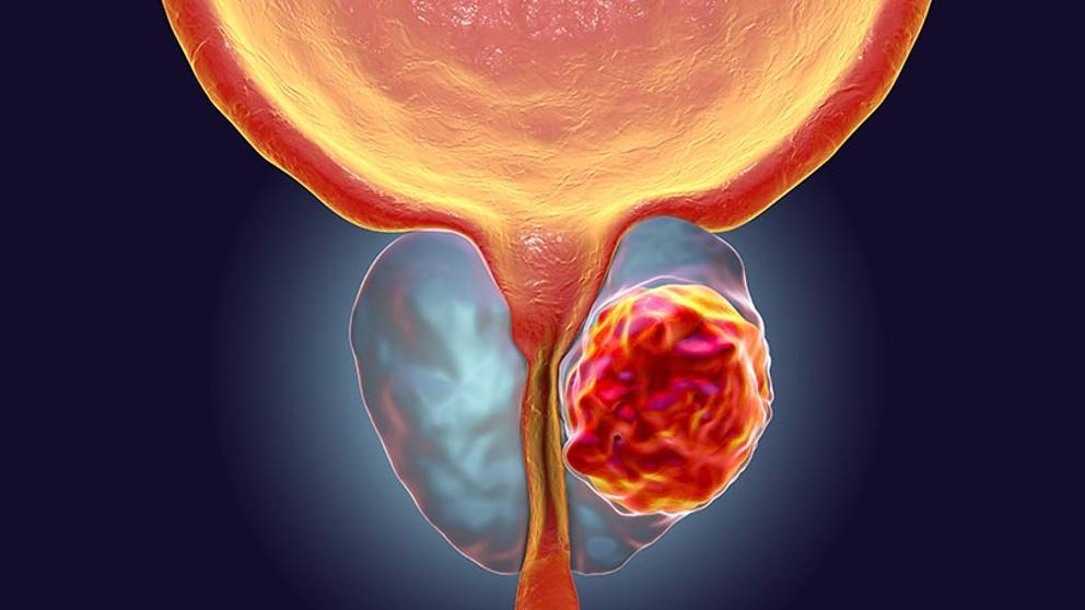 cancer de prostata que lo causa