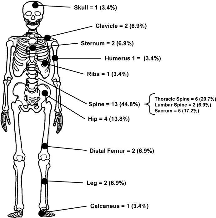 endometrial cancer and metastasis
