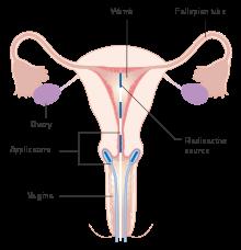 endometrial cancer ke lakshan)