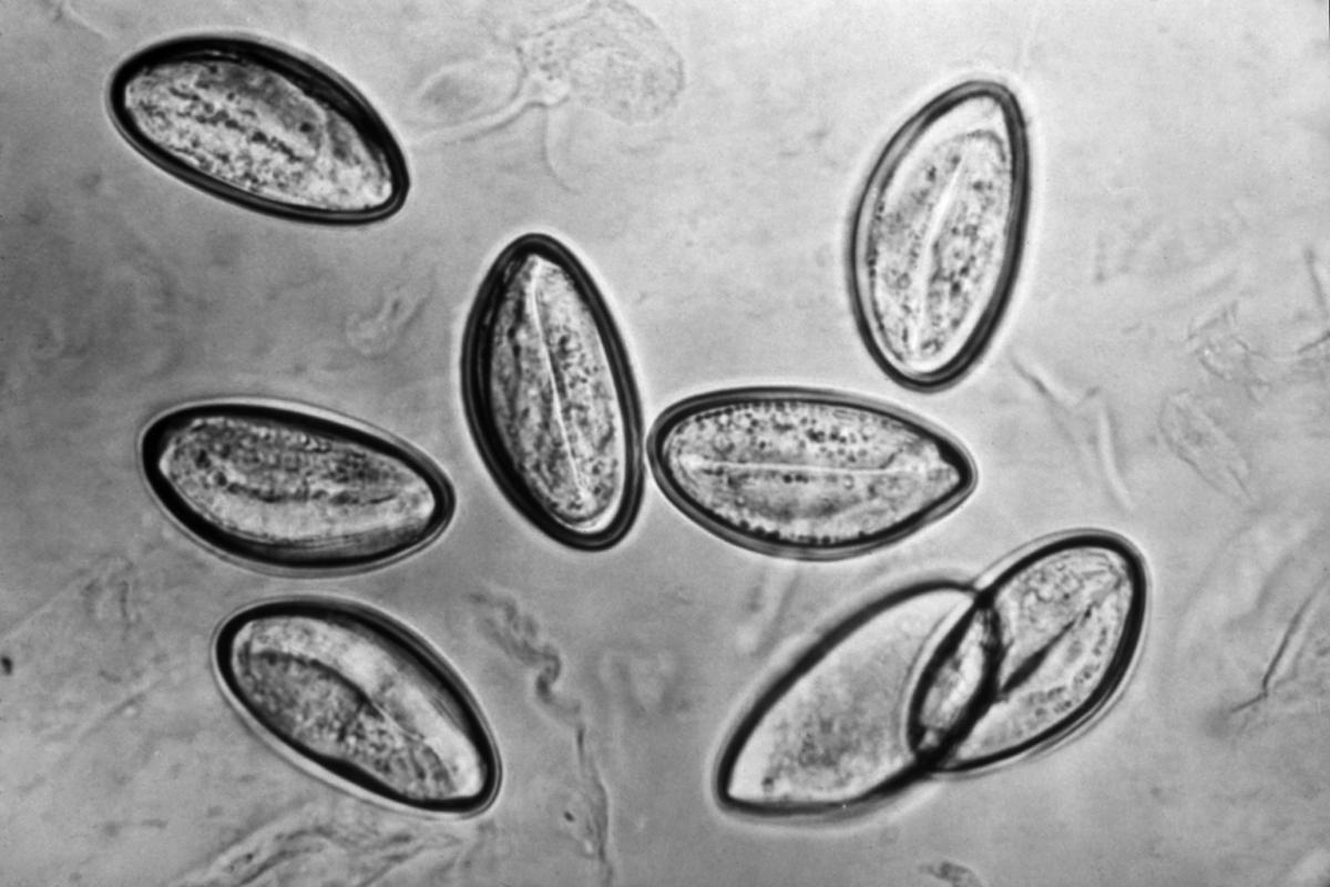 enterobius vermicularis egg in stool
