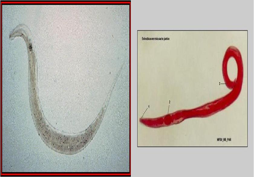 enterobius vermicularis klinik)