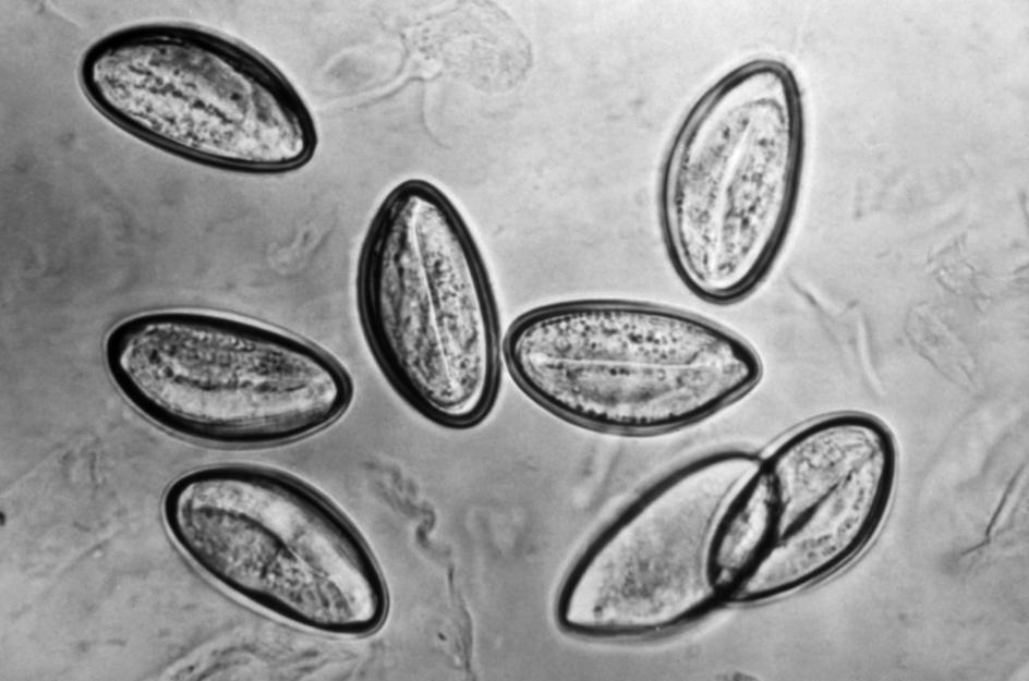 Parazitologie – 7-Enterobius vermicularis: Familia Oxiuridae