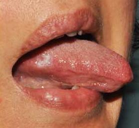 escissione papilloma lingua)