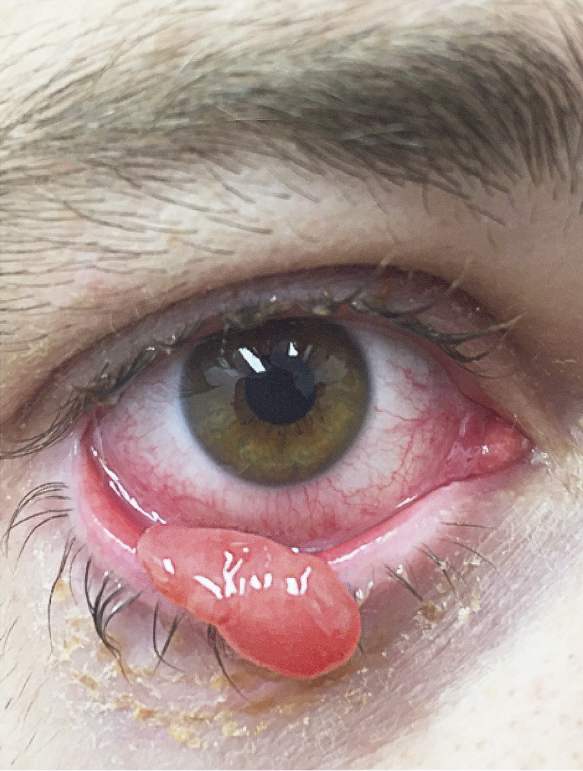 excision papilloma eyelid cpt