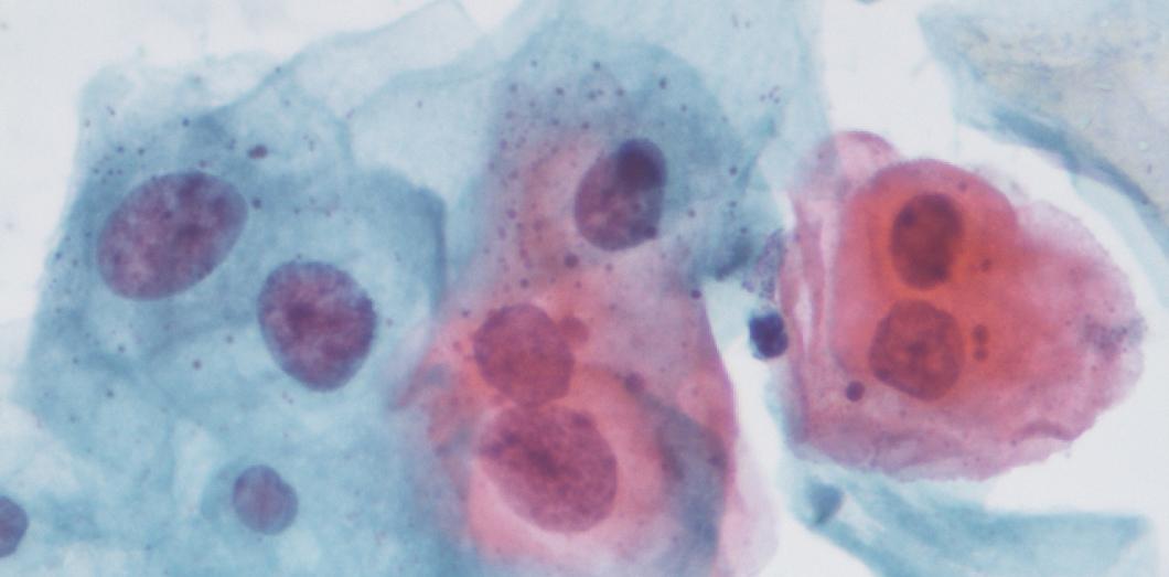 papillomavirus stade 2
