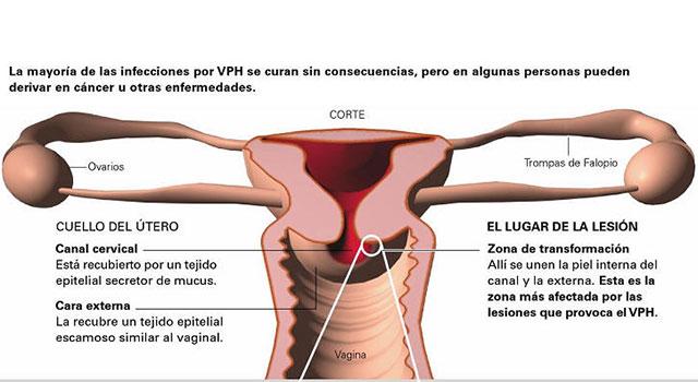 papiloma humano y el embarazo