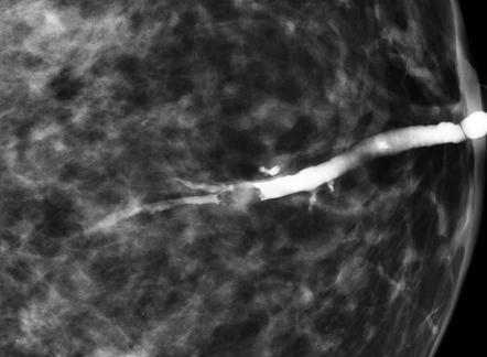 papilloma on breast mri
