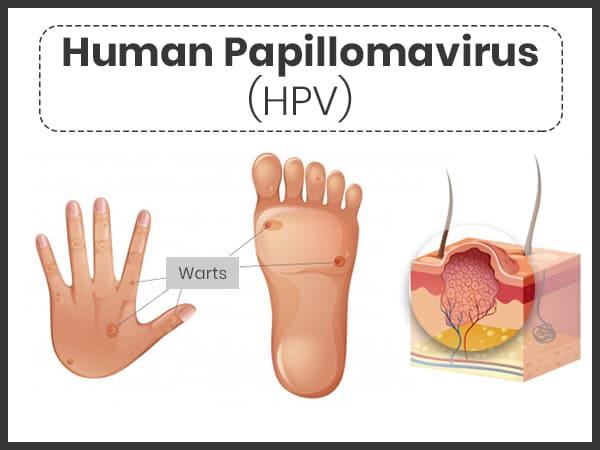 human papillomavirus symptoms test)