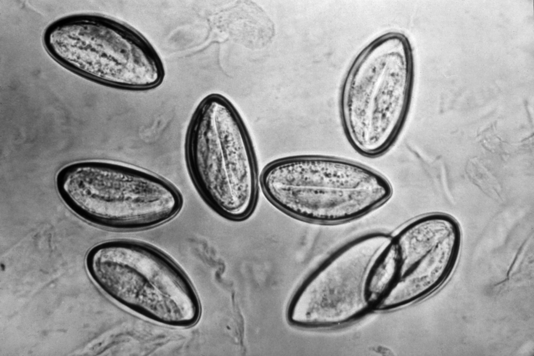 enterobius vermicularis egg