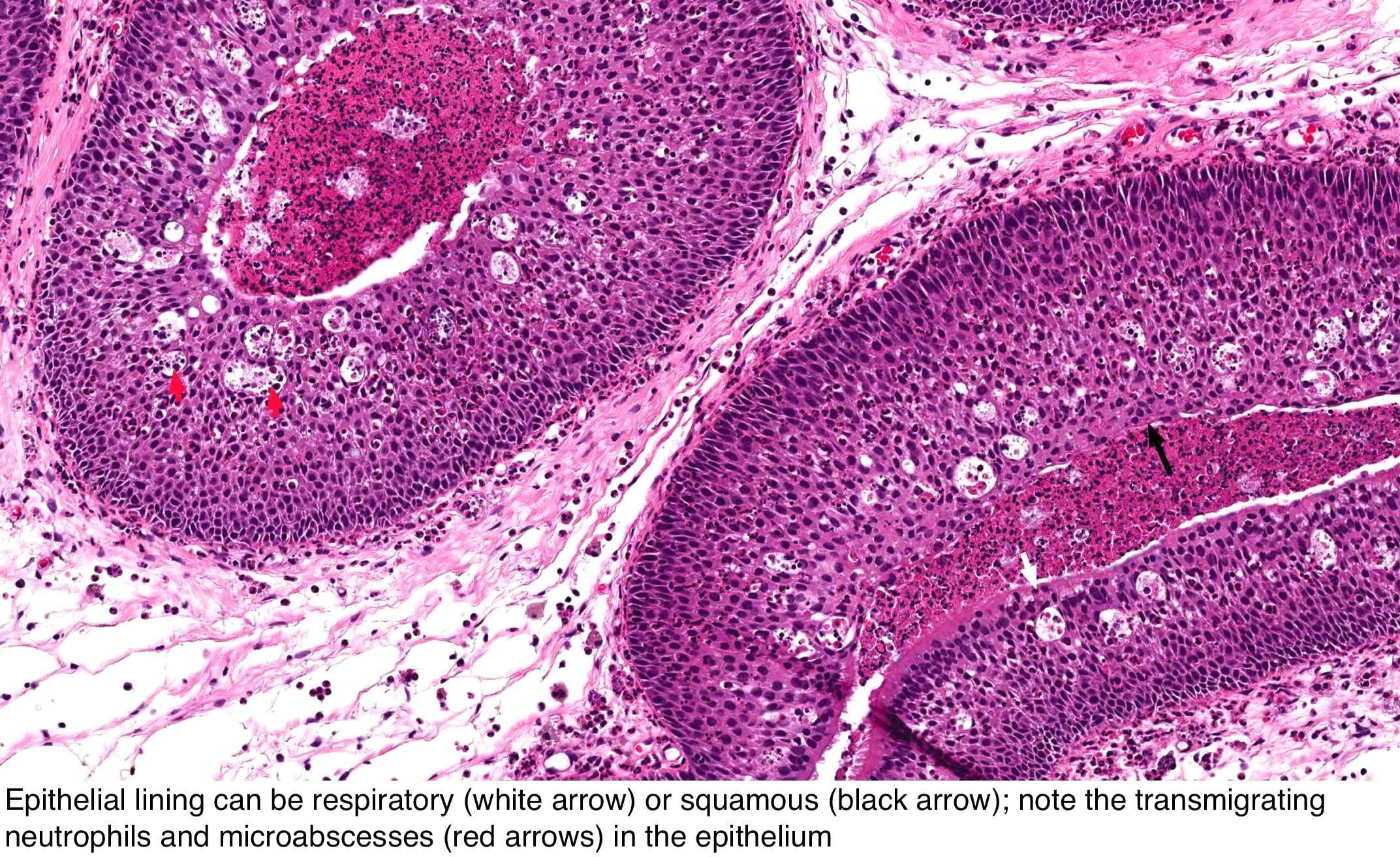 nasal squamous papillomas