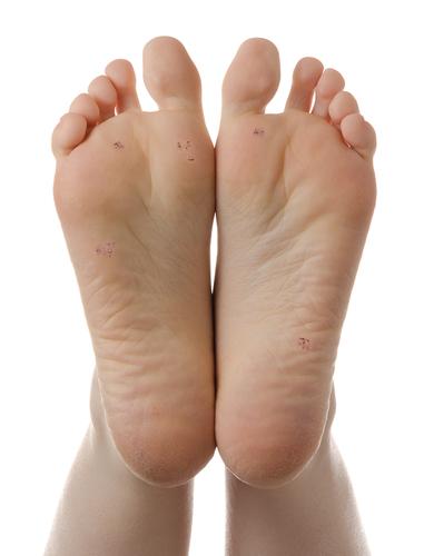 foot verruca cure