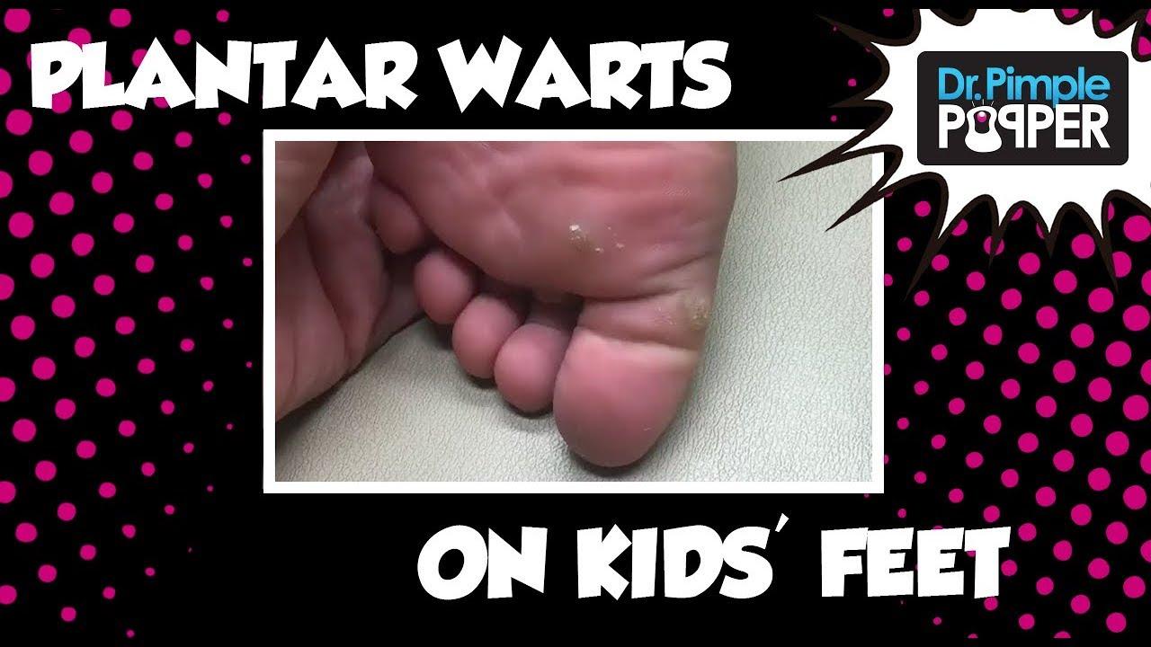 foot warts in children+pictures