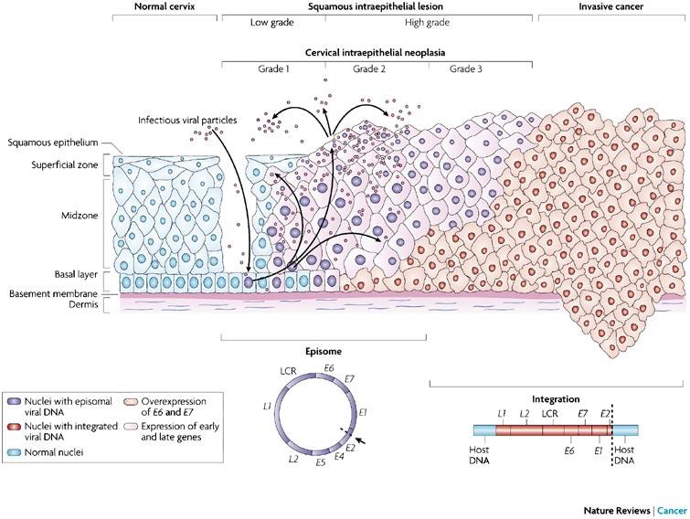 hpv e carcinoma della cervice uterina)