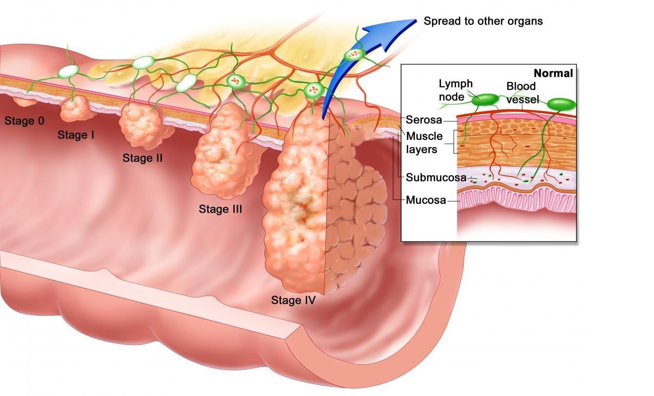 hpv internal genital warts