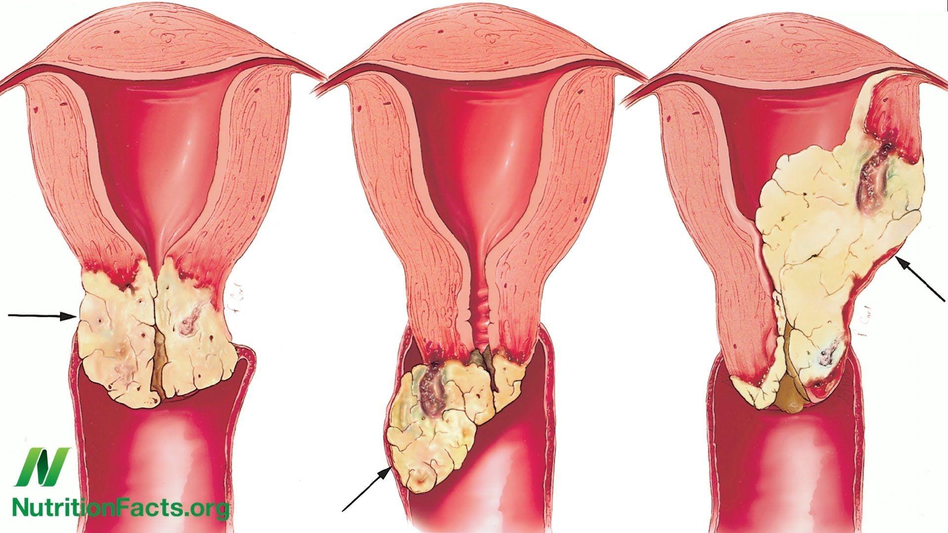 hpv utero tem cura