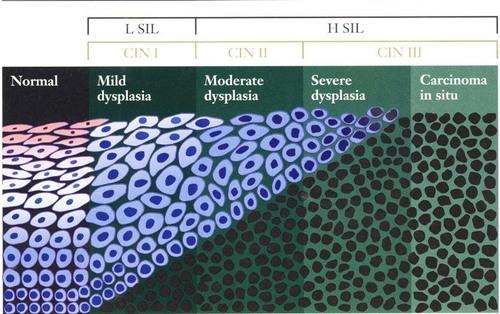 helminthiasis helminth infection tratament pentru viermisori-oxiuri