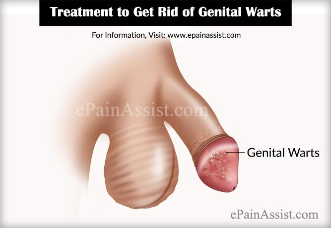 hpv warts how to get rid of
