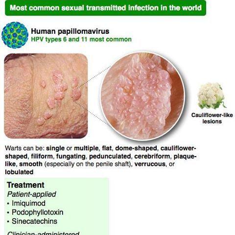 human papilloma lesions)