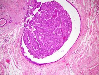 intraductal papilloma emedicine)