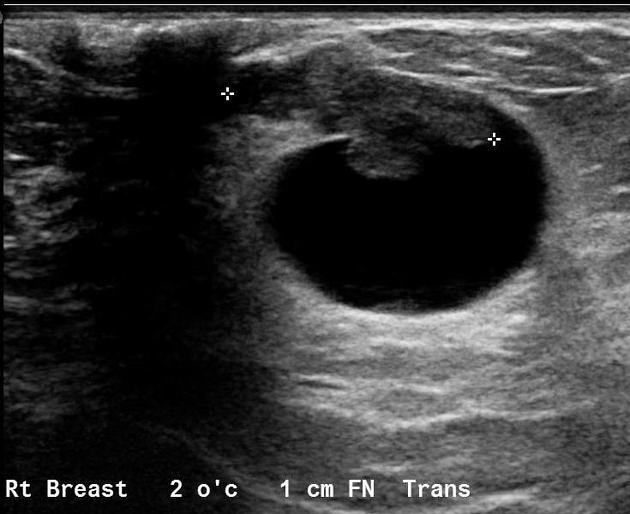 intraductal papilloma findings)