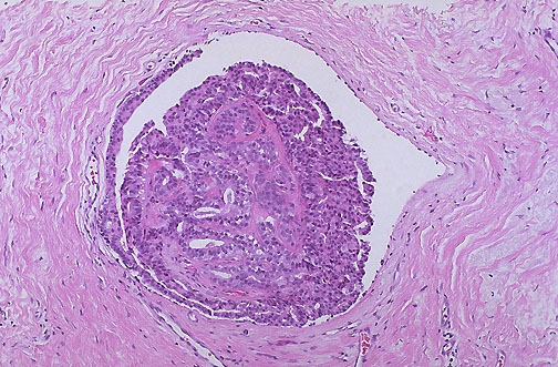 intraductal papilloma images)
