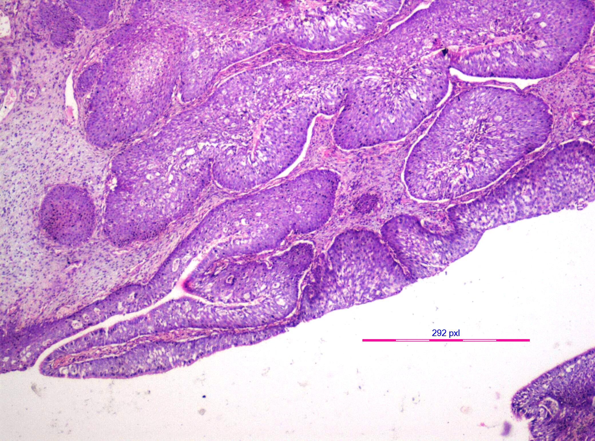 inverted papilloma nasal cause
